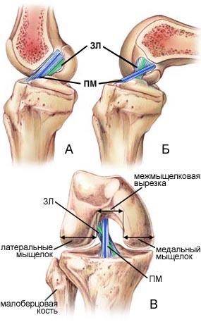 Крестообразна свяки коленного сустава боли в суставах на 28 неделе