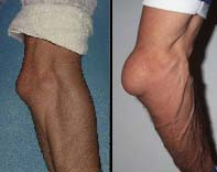 лодыжечный бурсит у фигуристов лечение