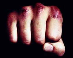 Ушибы межфалангового сустава пальца руки мрт плечевого сустава киев цена