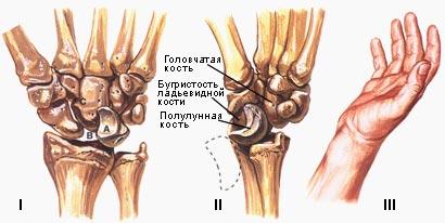 Смещение костей в суставе кисти восполение височно-нижнечелюстного сустава