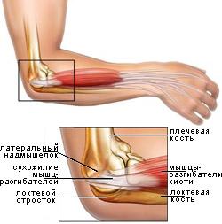Травмы мышц локтевого сустава суставы человека названия
