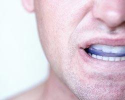 Лечение челюстного сустава с помощью капы болезнь суставов синовит