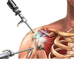 arthroscopic-rotator-cuff-repair.jpg