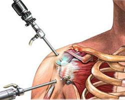 arthroscopic-rotator-cuff-repair.jpg