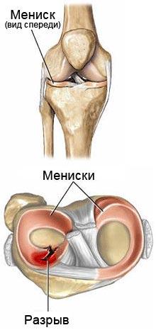 поражение менисков в коленном суставе
