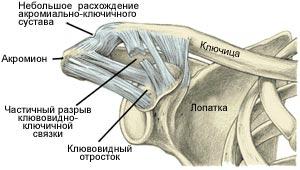Как лечить растяжения связок плечевого сустава