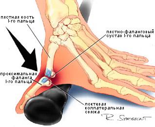 При растяжении связок одного из суставов пальца разведение ножек в тазобедренном суставе у грудничка