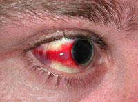 Покраснение глаз при сотрясении мозга