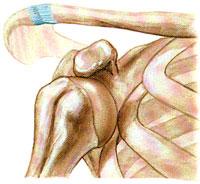 растяжение плечевого сустава когда пройдет