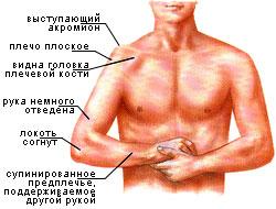 Вывих плеча | Спортивные травмы | Спортивная медицина