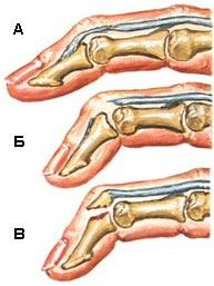 Разрыв разгибателя на уровне дистального межфалангового сустава узи суставов чтоможно узнать