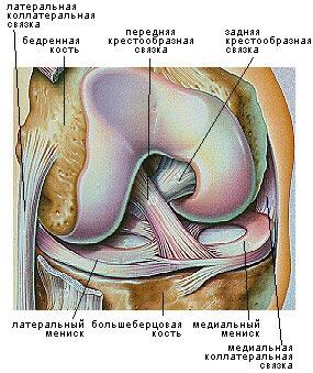 Разрыв передней крестообразной связки (ПКС)