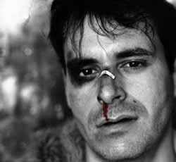 Мужчина принял рак за простуду и остался с дырой вместо носа: Люди ... | 230x250