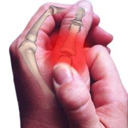 Лечение медью остеохондроза